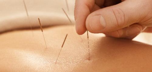 針治療の画像